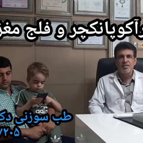 لیزرآکوپانکچر و عوارض فلج مغزی در کودکان
