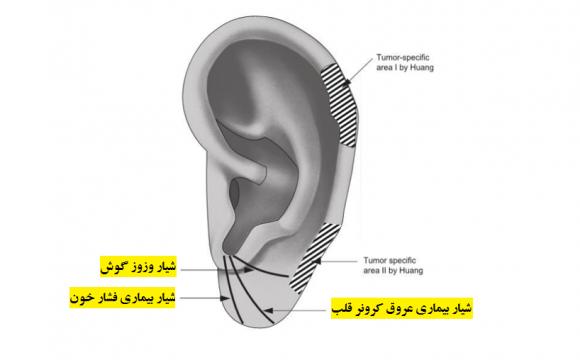 تشخیص انواع بیماری ها بر اساس ظاهر گوش