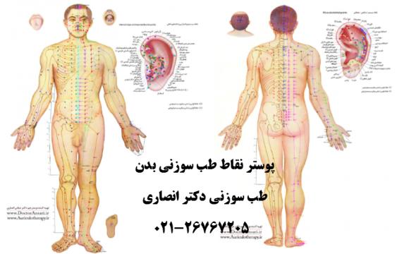 چاپ پوستر نقاط طب سوزنی بدن