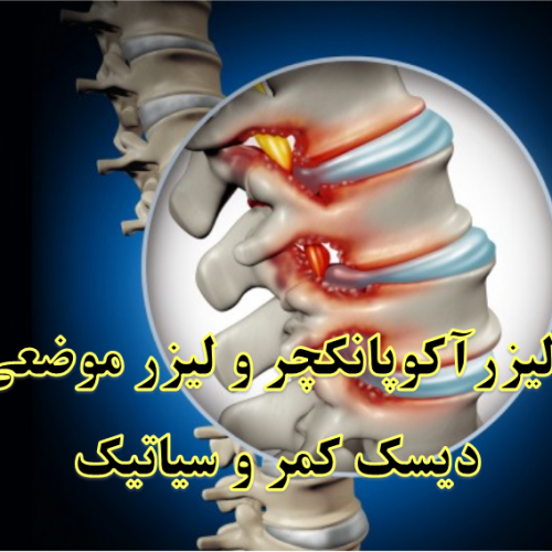 تأثیر لیزرآکوپانکچر و لیزر موضعی بر درد کمر و سیاتیک