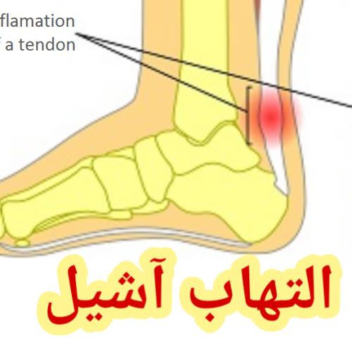 التهاب آشیل و طب سوزنی لیزری