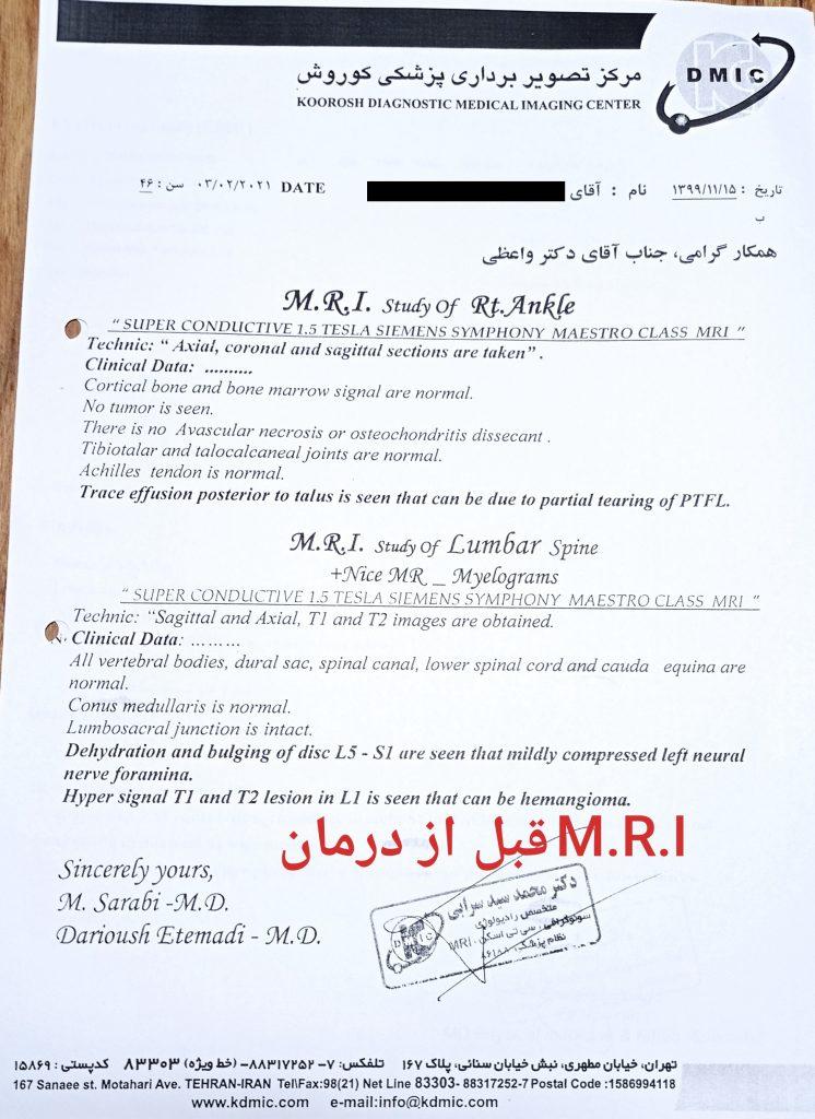 M.R.I. قبل از درمان با طب سوزنی لیزری در بیمار مبتلا به کمردرد و سیاتیک