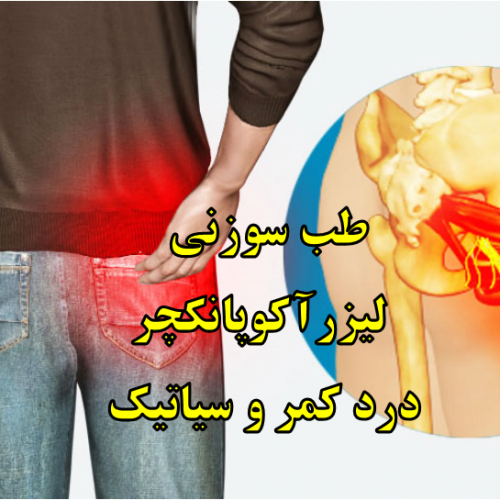 کمردرد و درد سیاتیک