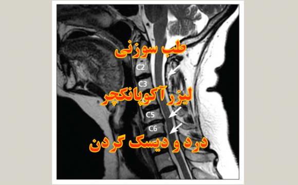 درد و دیسک گردن